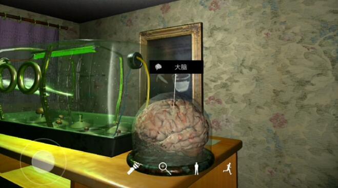 《孙美琪疑案:王勇》三级线索——大脑